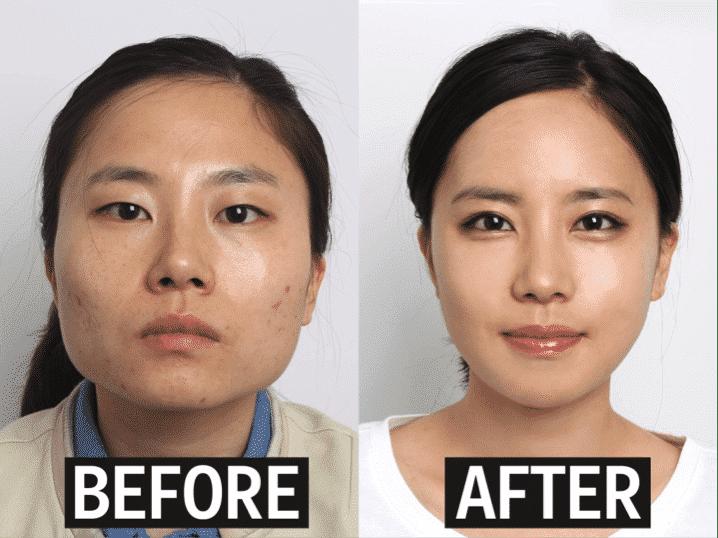 Fun Fact about South Korea 6 Plastic Surgery