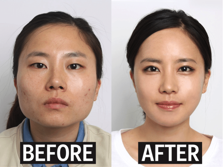 Fun Fact about South Korea 6 Plastic Surgery